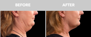 coolsculpting double chin removal